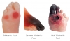 Diabetic Foot Models