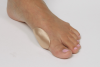 BUNION BUTTON
