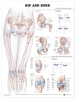 Anatomical Poster - Hip & Knee Injuries