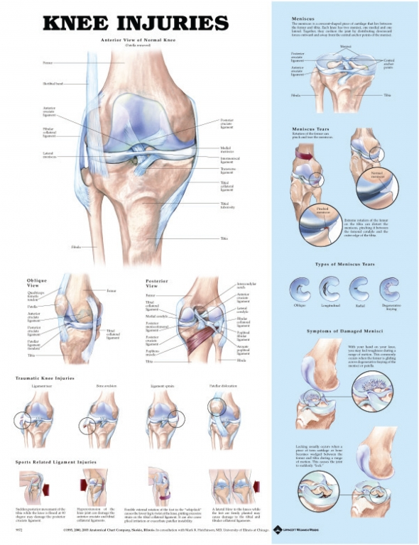 Anatomical Poster Knee Injuries This Chart Shows